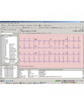 ABPM CardioPerfect Software Upgrade